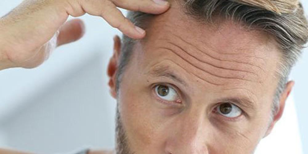 5 Μύθοι και οι Αλήθειες για την Αραίωση των Μαλλιών